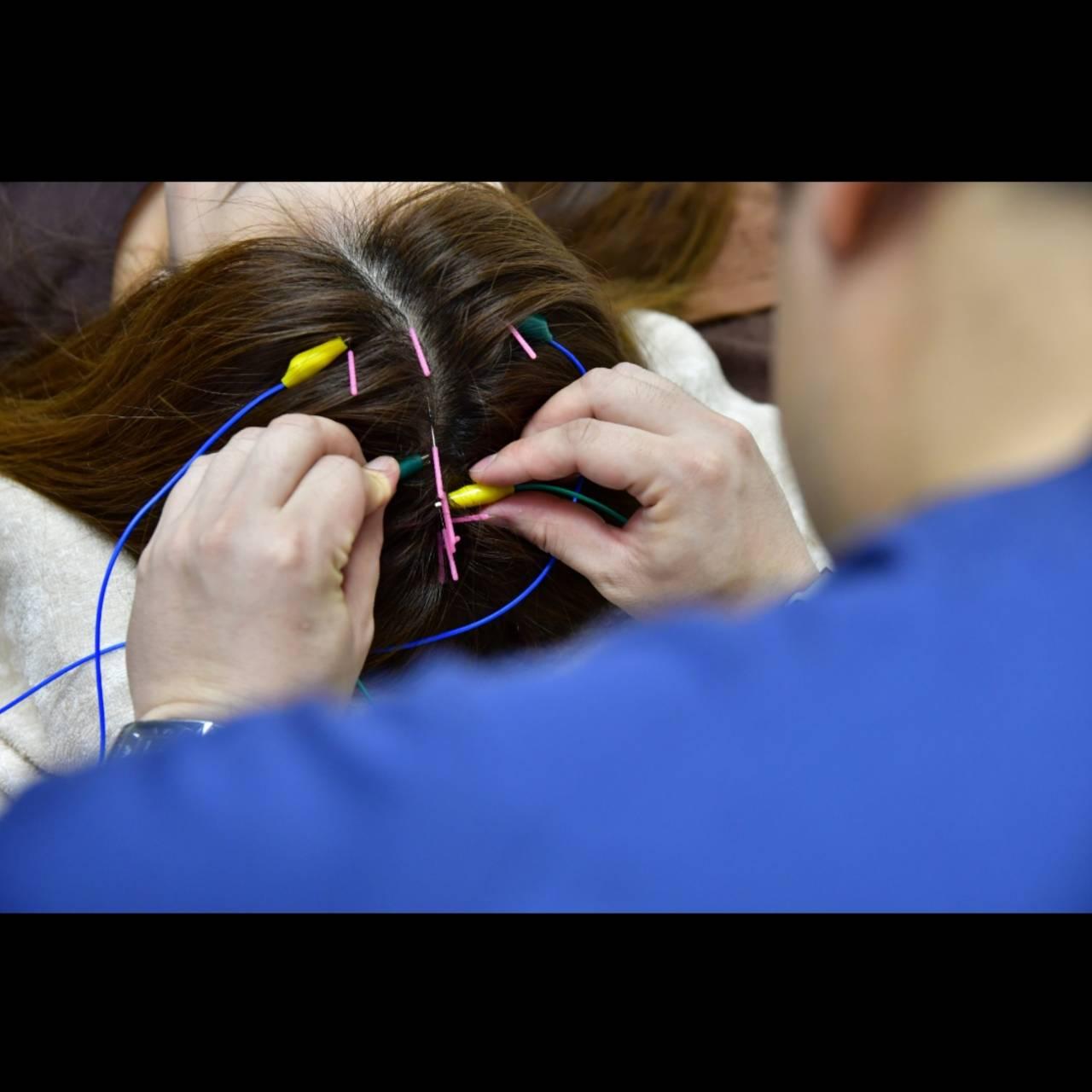 頭皮に鍼を刺し脳への刺激で根治を:イメージ
