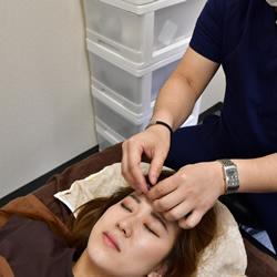 肌質の改善特化型スキンケア美容鍼:イメージ