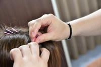 アスリートに人気の頭皮鍼イメージ