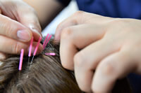 頭皮鍼に特化したオリジナル施術イメージ