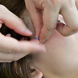 美容鍼コース 竹:イメージ