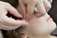 美容鍼はダーマペンを応用した施術法で効果を実感イメージ