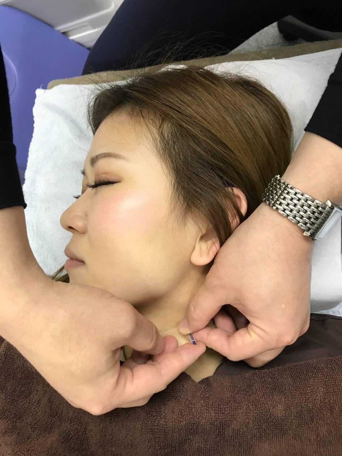 首の美容鍼(オプション):イメージ